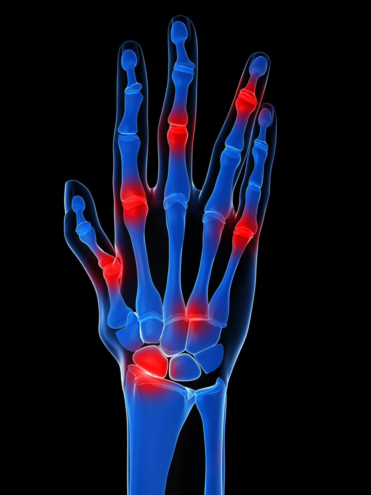 Identifying joint damage. © Sebastian Kaulitzki, Fotolia