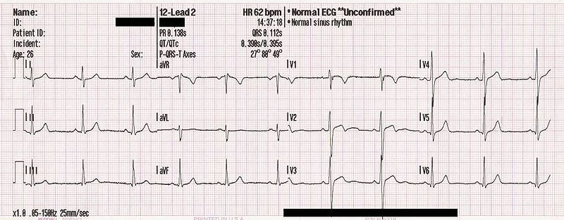 VHR is measured using an electrocardiogram. © MoodyGroove / public domain