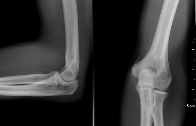 The elbow is a congruent joint. © MB, Licence Creative Commons