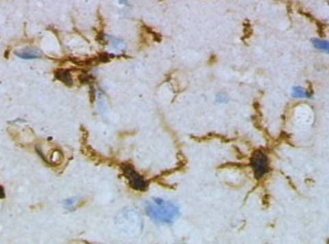 The microglial cells are stained brown. © Grzegor Wicher / Wikimedia Commons (public domain)