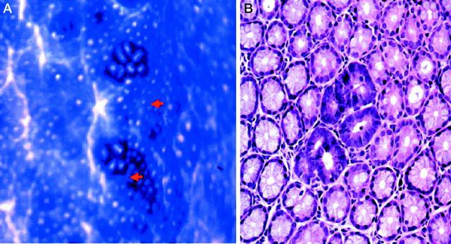 Pre-neoplastic lesions on the intestinal epithelium are seen on the left of the picture (red arrows) and to the right (darker violet). © Nature