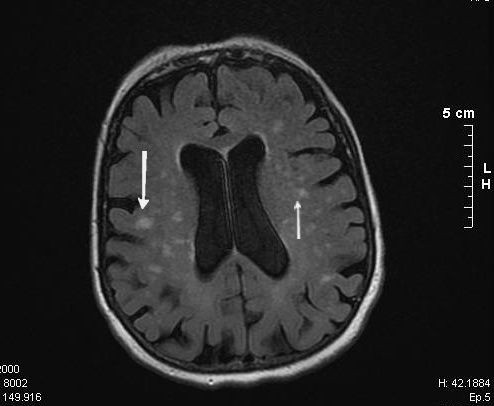 Leukoaraiosis is a vascular dementia in which the vascular lesions are seen by MRI brain imaging (white spots). © Yakafaucon / Licence Creative Commons