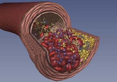 Thrombosis can be venous or arterial. © DR