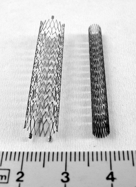 A stent is a cylindrical metal endoprosthesis. © Franck C. Müller, Wikimedia, CC by-sa 2.5