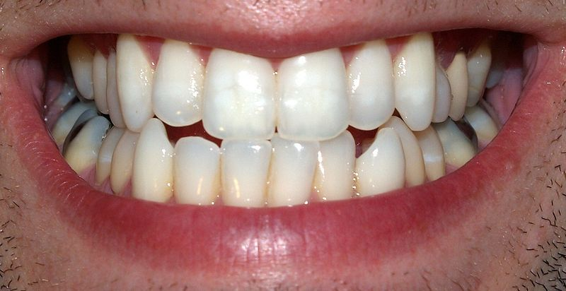 Saliva also protects teeth from caries.  © David Shankbone, Wikimedia, CC by-sa 3.0