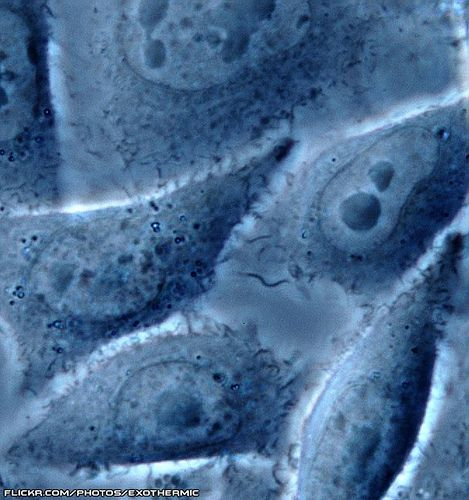 Observation of cells by a phase contrast  microscope. © Exothermic, CC by-nc-sa 2.0