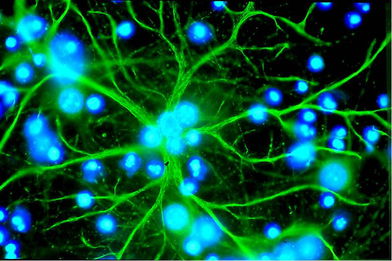 Astrocytes are star-shaped in structure. © Karin Pierre, Institute of physiology, UNIL, Lausanne, European Dana Alliance for the Brain (EDAB)