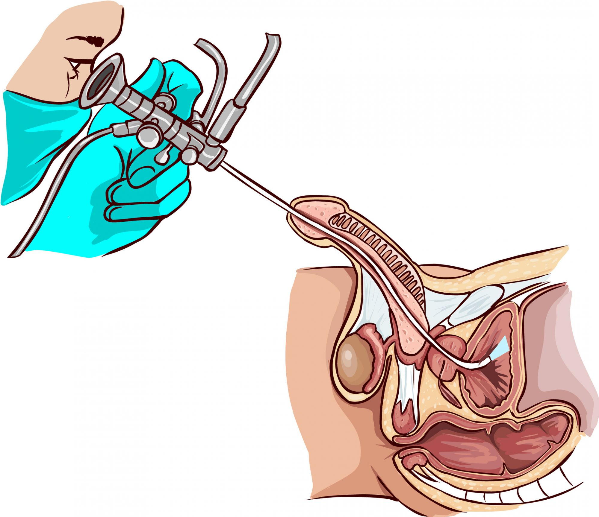 Cystoscopy is particularly performed to identify possible bladder cancer. © hakan çorbac&#305, Fotolia