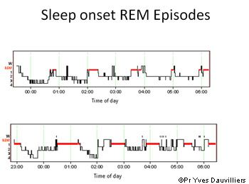 The sleep polysomnograph recording is used particularly to establish the cycles of the patient's sleep and its different phases. © Prof Yves Dauvilliers