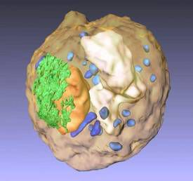 The nucleolinus is one of the cell structures which make up the eukaryotic cell, within the nucleus (orange). Credit: UCLA/California NanoSystems Institute
