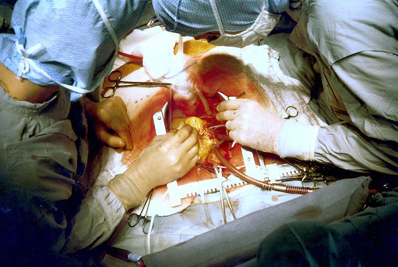 Aorto-coronary bypass requires open surgery. © SeanMack, Wikimedia, public domain