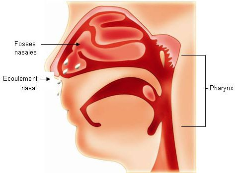 Rhinopharyngitis is an inflammatory disorder of the pharynx associated with disease of the nasal fossae. Credits : GSK.