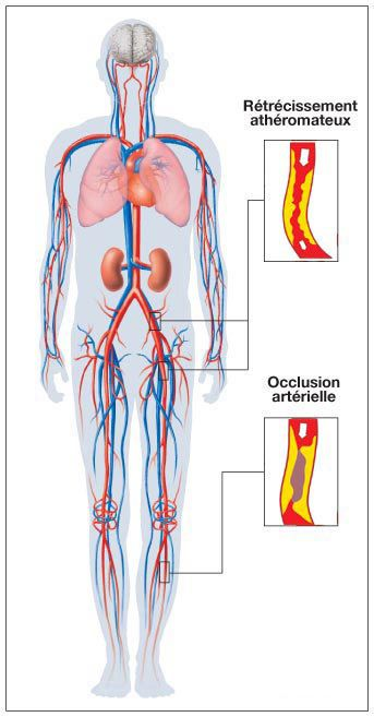 Arteritis mainly affects the lower limbs. © prevention-cardio.fr