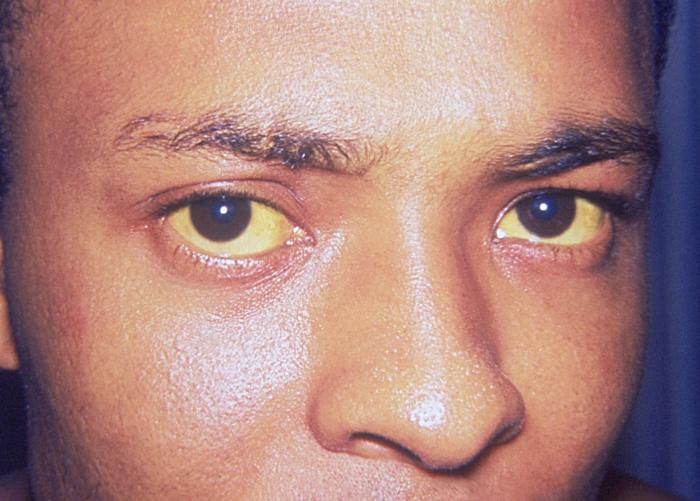 Bilirubin is a yellow pigment which discolours the eyes, skin and mucosal membranes. Jaundice may only be diagnosed in the early stages from the eyes. © Thomas F. Sellers/Emory University, DP