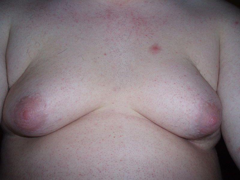 Gynaecomastia may simply be embarrassing but can also be a sign of a more serious illness.  © FatM1ke, Wikimedia, GFDL 1.2