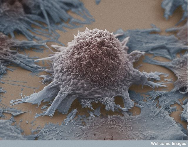 cancer-du-poumon-cellules-anne-weston-lri-cruk-wellcome-images-filckr-nc-nd-02