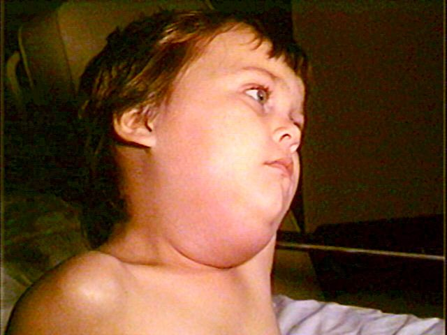 Mumps is a viral disease which affects the salivary glands. © DR
