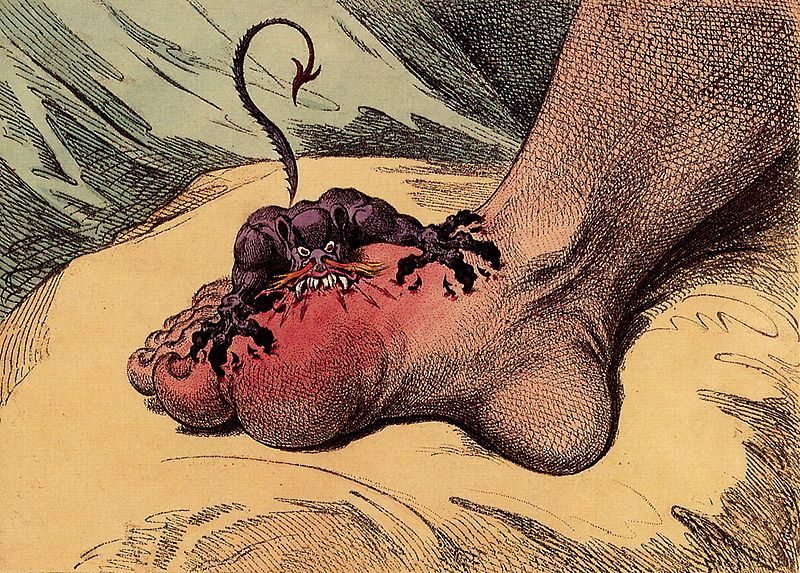 Gout is a painful condition which often develops in the great toe. © DR