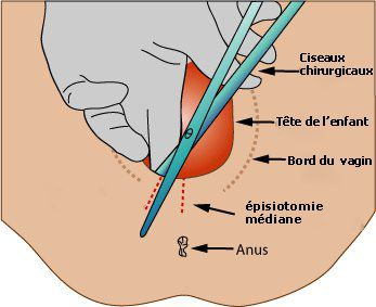 Medio-lateral episiotomy. © Padawane, Wikipedia DP