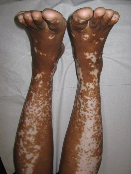 The discolouration of skin which causes vitiligo may affect more or less widespread areas of the body. © Grook Da Oger, Wikipedia