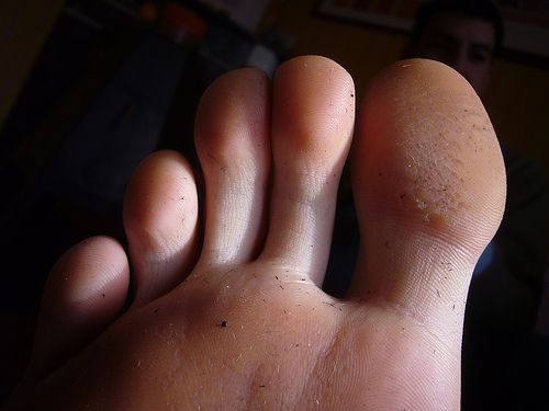 The mycoses mostly affect the toes. Gunter Panzerfaust/Licence Creative Commons