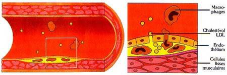 Atherosclerosis is the formation of atheromatous plaques in the arteries. © prevention.ch