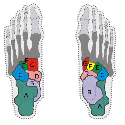 The seven bones of the tarsus seen from beneath (left) or above (right):  A=calcaneus; B=talus; C=cuboid; D=navicular bone; E=lateral cuneiform; F=intermediary cuneiform; G=median cuneiform.  © Tubantia, Wikimedia, CC by-sa 3.0