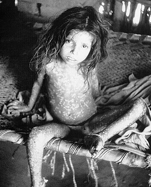 Smallpox is a viral disease that has been eradicated by vaccination campaigns. © DR
