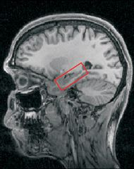 Ammon's horn is one of the regions of the hippocampus (surrounded here in red). © Eleanor Maguire