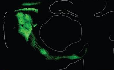 The green areas in the picture are the expression of channelrhodopsin in the brain of a genetically modified mouse.  © Nature