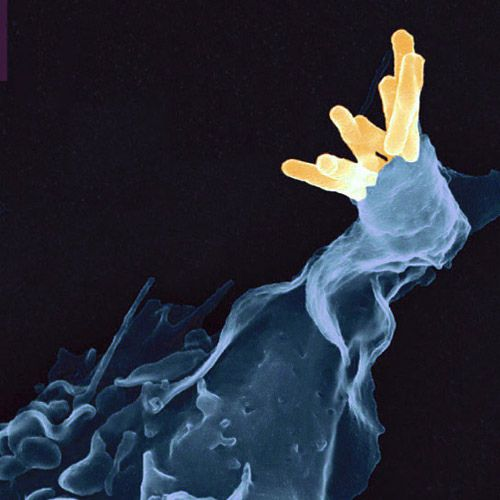 The Koch bacilli can be phagocytosed by immune cells. © AJC1, Flickr, CC by-nc 2.0