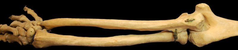 The radius (below here) is a forearm bone parallel to the ulna. © DR