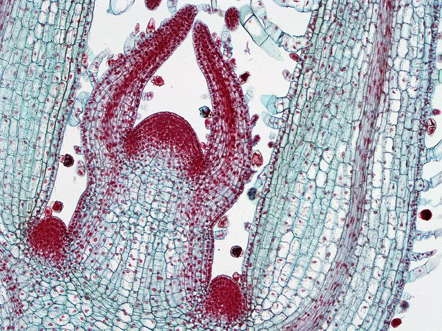 Colouration of a cross section of a terminal bud. The cambium is visible in the centre of the leaf in the right cross section: it is the most coloured area with the thinnest cells. © BlueRidgeKitties CC by-nc-sa 2.0