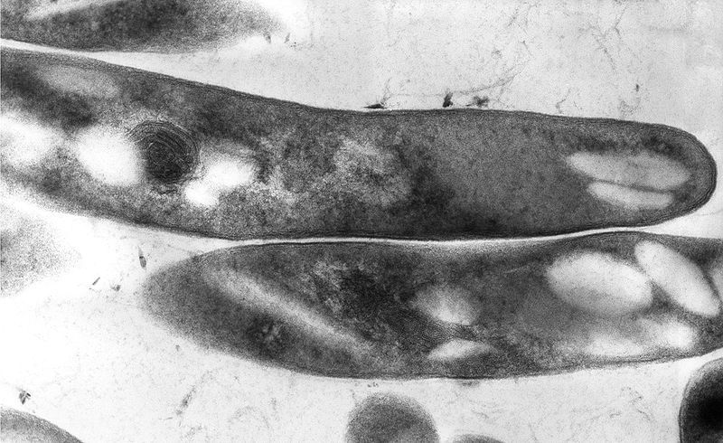 Mycobacterium ulcerans is the agent responsible for the Buruli ulcer. © Centres for Disease Control and Prevention, public domain